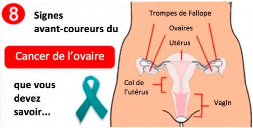 CANCER OVAIRE